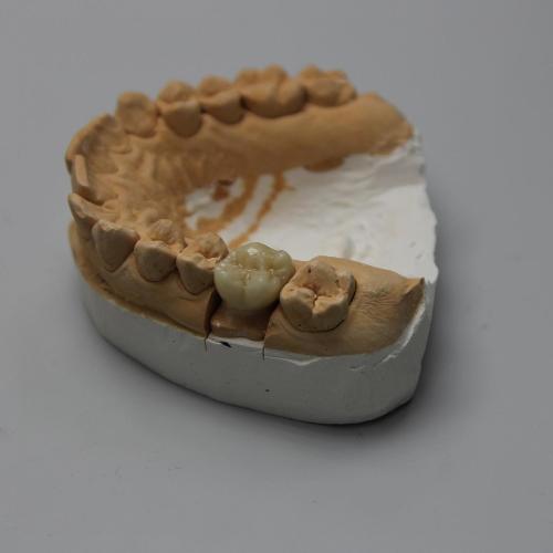 Протезування 16 зуба за допомогою діоксиду цирконію!